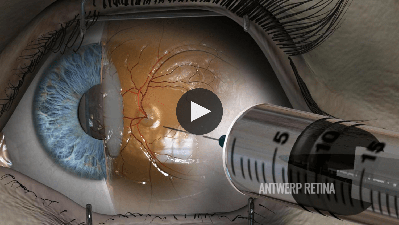 intravitreale injectie